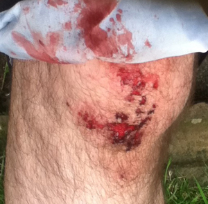 My bloody knee